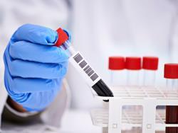 По направлению врача: В Эстонии организован мобильный сбор анализов на коронавирус